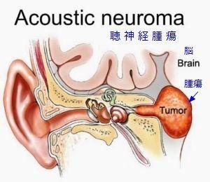 111acoustic-neuroma-300x260.jpg